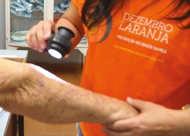 Câncer de pele tem prevenção e tratamento. Fique atento